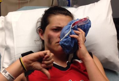 Walsh in the hospital after getting hit in the face with a softball. (Courtesy of Q. Walsh)