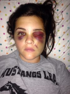 Walsh's face a few days after her injury. Her face would look like this for the next month. (Courtesy of Q. Walsh)